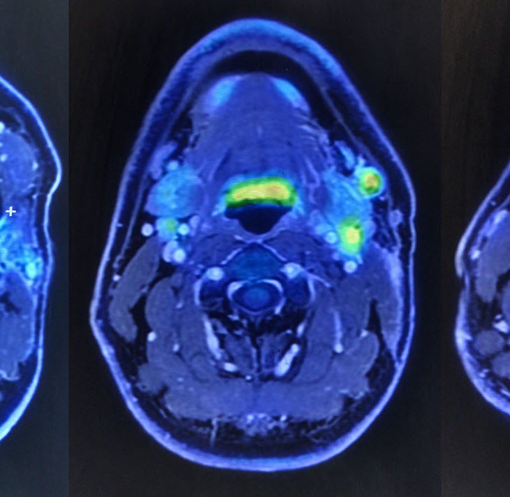 PET-MRIの画像。担当医の許可を得て撮影。赤や黄色で反応しているのが分かる。(通常の箇所も多少は光るものだとか)